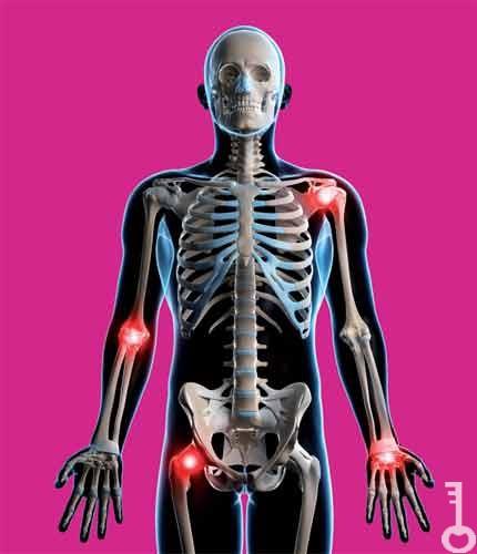 artrózis artritisz kezelésére szolgáló gyógyszerek és gyógyszerek