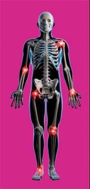 a boka kenőcsének gyulladása a vállízület 3 fokos artrózisos kezelése